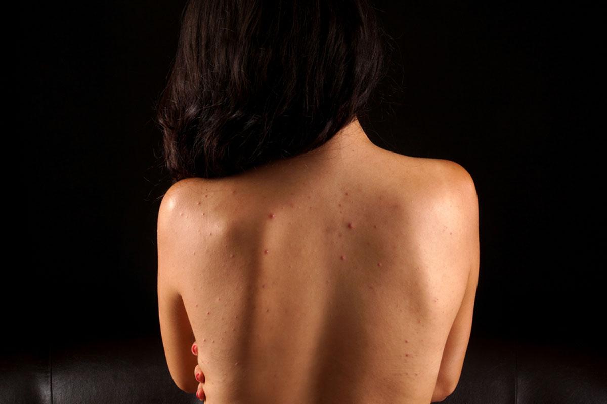 Így szabadulj meg a háton lévő pattanástól: 7 tipp, ami gyors javulást hoz